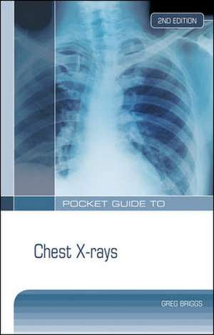 Pocket Guide to Chest X-rays 2nd Edition