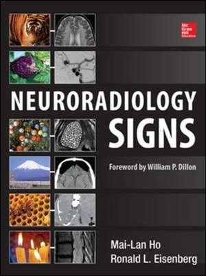 Neuroradiology Signs