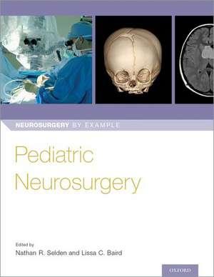 Pediatric Neurosurgery de Nathan Selden