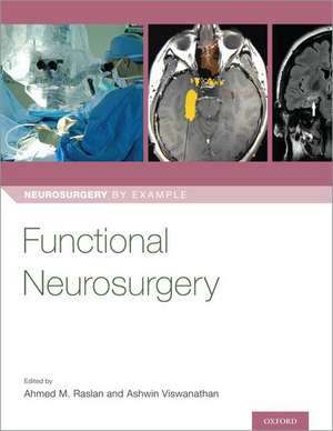 Functional Neurosurgery de Ahmed Raslan