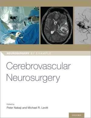 Cerebrovascular Neurosurgery de Peter Nakaji