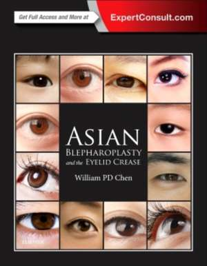 Asian Blepharoplasty and the Eyelid Crease