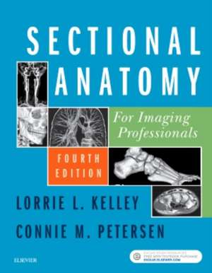 Sectional Anatomy for Imaging Professionals imagine