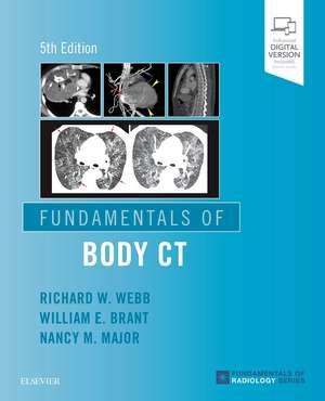Fundamentals of Body CT imagine
