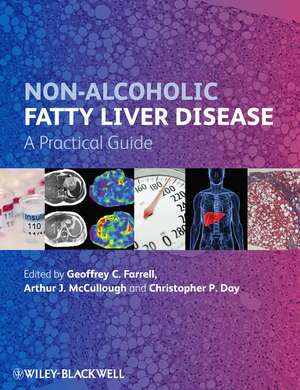 Non–Alcoholic Fatty Liver Disease