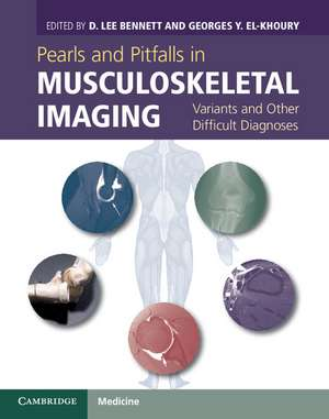 Pearls and Pitfalls in Musculoskeletal Imaging: Variants and Other Difficult Diagnoses de D. Lee Bennett