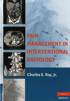 Pain Management in Interventional Radiology de Charles E. Ray, Jr.