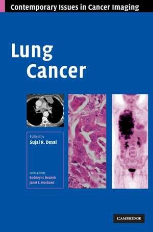 Lung Cancer de Sujal R. Desai