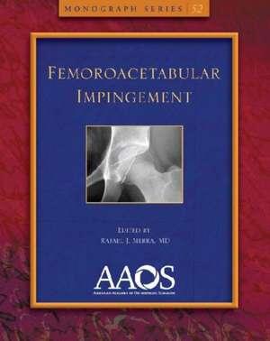 Femoroacetabular Impingement