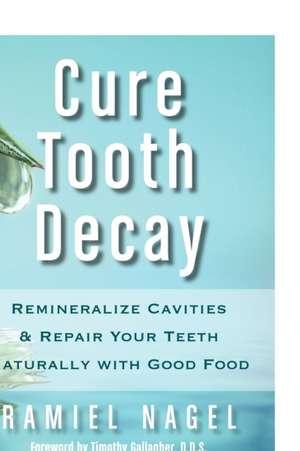 Cure Tooth Decay de Ramiel Nagel
