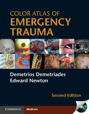 Color Atlas of Emergency Trauma imagine