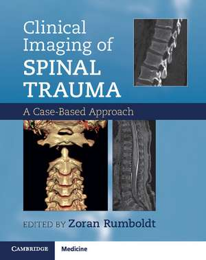 Clinical Imaging of Spinal Trauma: A Case-Based Approach de Zoran Rumboldt