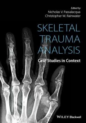 Skeletal Trauma Analysis: Case Studies in Context de Nicholas V. Passalacqua