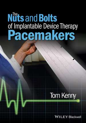 The Nuts and Bolts of Implantable Device Therapy