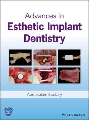Advances in Esthetic Implant Dentistry de Abdelsalam Elaskary