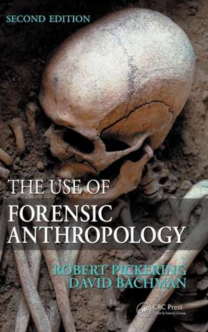 The Use of Forensic Anthropology de Robert B. Pickering