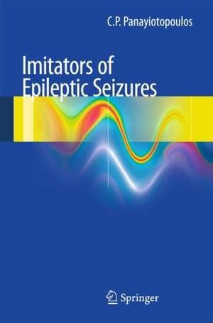 Imitators of epileptic seizures