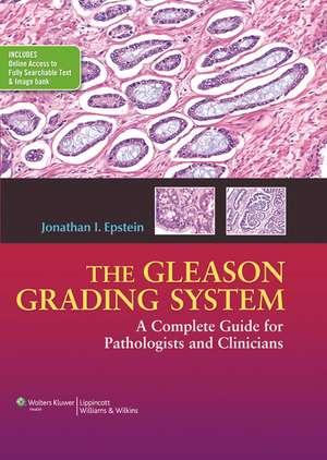The Gleason Grading System