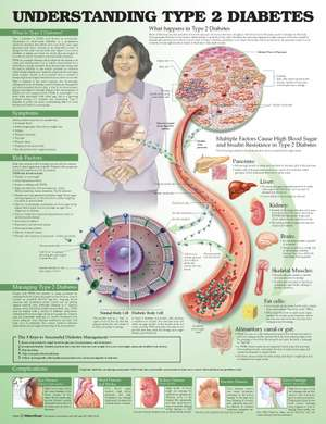 Understanding Type 2 Diabetes Anatomical Chart