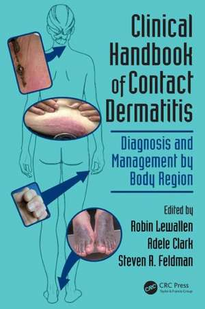 Clinical Handbook of Contact Dermatitis de Robin Lewallen