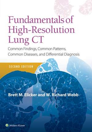 Fundamentals of High-Resolution Lung CT: Common Findings, Common Patterns, Common Diseases and Differential Diagnosis de Brett M Elicker MD