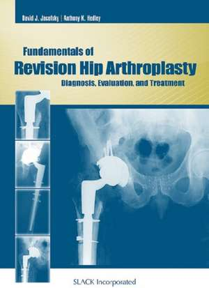 Fundamentals of Revision Hip Arthroplasty