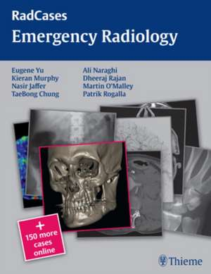 Emergency Radiology de Eugene Yu