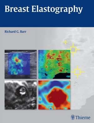 Breast Elastography de Richard G. Barr