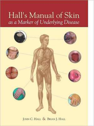 Hall's Manual of Skin as a Marker of Underlying Disease