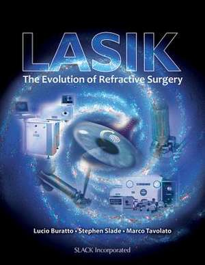 LASIK:  The Evolution of Refractive Surgery de Lucio Buratto