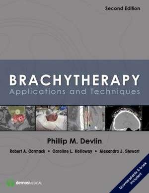 Brachytherapy, Second Edition