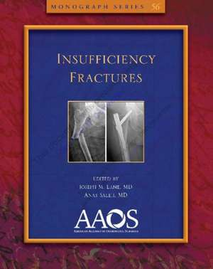 Insufficiency Fractures