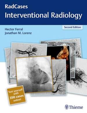 Radcases Interventional Radiology imagine