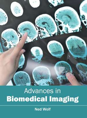 Advances in Biomedical Imaging