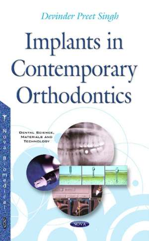 Implants in Contemporary Orthodontics