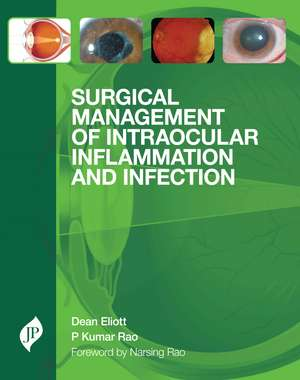 Surgical Management of Intraocular Inflammation and Infection