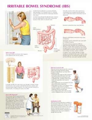 Irritable Bowel Syndrome Chart de Frank H. Netter