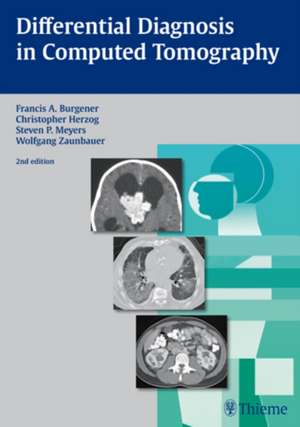 Differential Diagnosis in Computed Tomography imagine