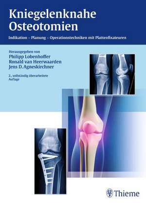 Kniegelenknahe Osteotomien