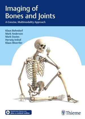 Imaging of Bones and Joints de Klaus Bohndorf
