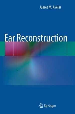 Ear Reconstruction de Juarez Avelar