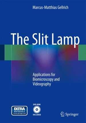 The Slit Lamp