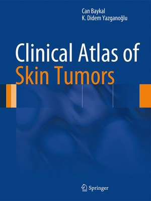 Clinical Atlas of Skin Tumors