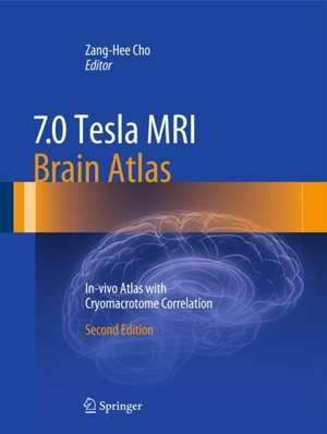 7.0 Tesla MRI Brain Atlas