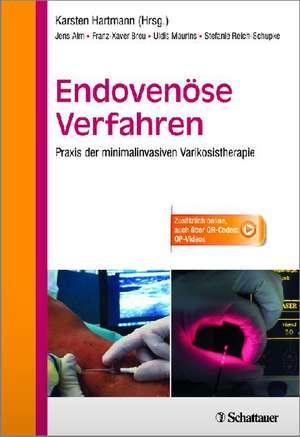 Endovenoese Verfahren
