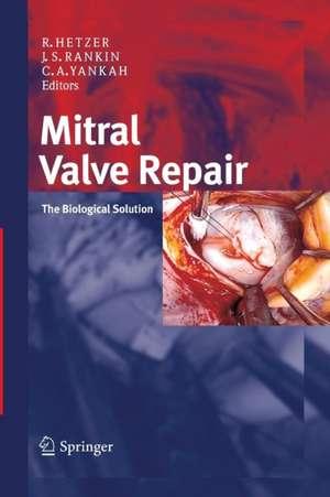 Mitral Valve Repair imagine