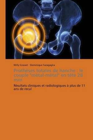 Prothèses totales de hanche : le couple metal-metal en tête 28 mm