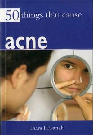 50 Things That Cause Acne de Inara Hasanali
