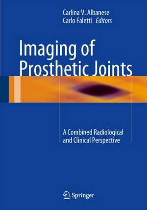 Imaging of Prosthetic Joints: A Combined Radiological and Clinical Perspective de Carlina V. Albanese