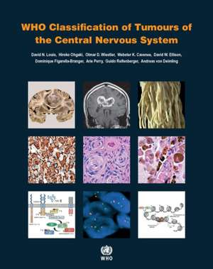 Who Classification of Tumours of the Central Nervous System imagine